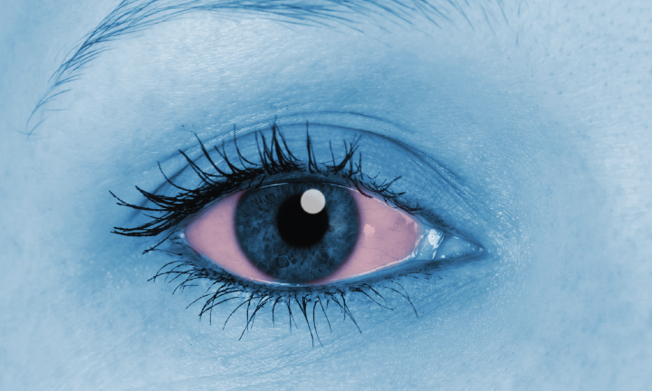 10 Most Common Causes Of Red Eye