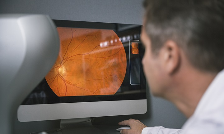 Can Health Risks Be Detected with an Eye Exam?